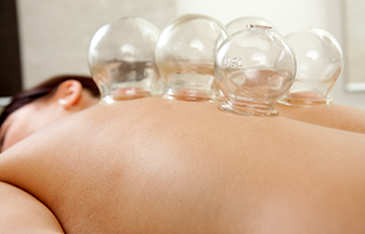 Fire-Cupping-Therapy